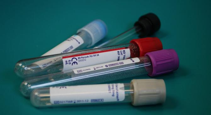 Излязоха резултатите от пробите за коронавирус на двете жени от Русе
