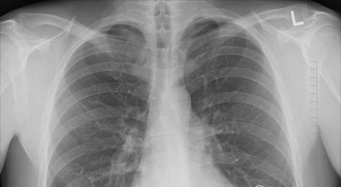 Вижте пораженията на белите дробове на пациент с COVID-19