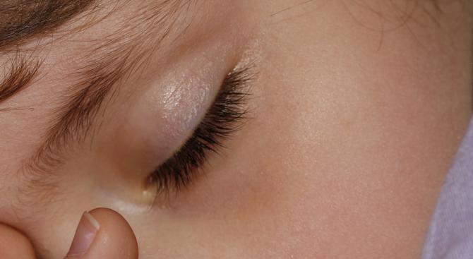 Недоспиването увеличава риска от психични проблеми за децата