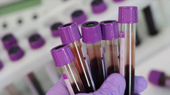 Удължават периода за безплатно тестване за хепатит С в София