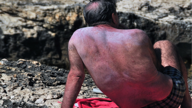 С всяко следващо слънчево изгаряне на кожата рискът от меланом нараства
