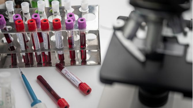 Кметът на Велико Търново се тества за коронавирус