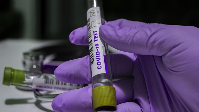 Студент и мъж на 49 години са новите заразени с коронавирус в Добричко