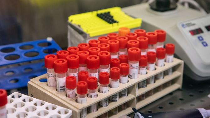 Броят на активните случаи на коронавирус в Словения се покачи