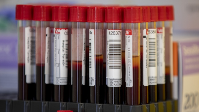 В Словакия са регистрирани нови 31 случая с коронавирус за