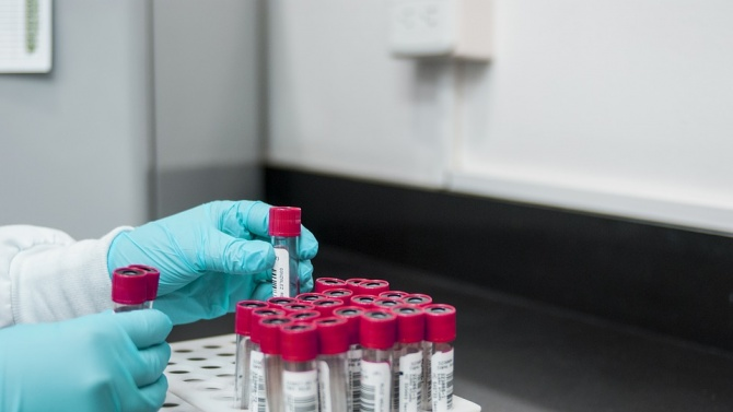 В Италия днес са регистрирани 159 нови случая на коронавирус