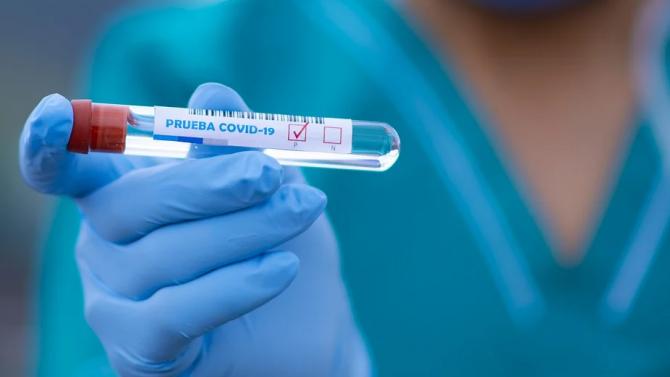 Вижте къде са новите случаи на COVID-19 у нас