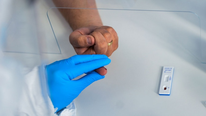 Разкриват лаборатория за PCR-тестове в УМБАЛ-Пловдив
