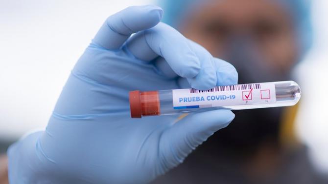 Отрицателни са пробите за COVID-19 на учителите, контактни на заразената преподавателка в Ловеч