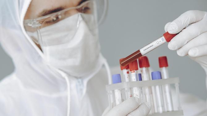 Цената на тестовете за COVID-19 в различните лаборатории варира и