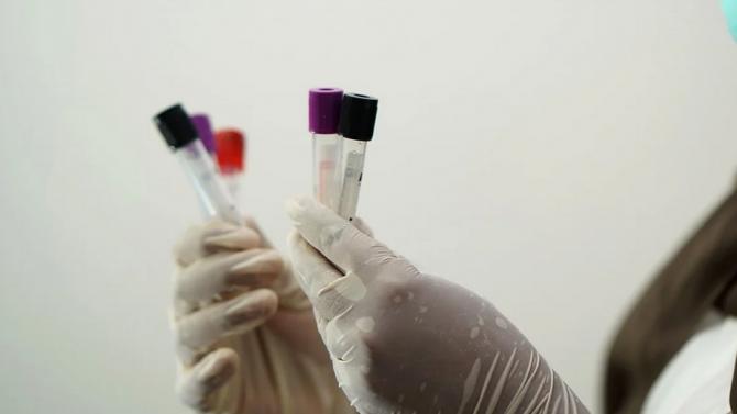 Ученик и двама учители са с коронавирус в Бургаско