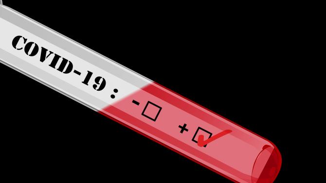 Руски биолог обясни защо PCR тестът може да не открие COVID-19