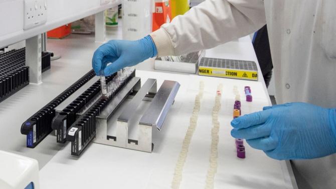 Рекорден брой нови случаи на коронавирус в Словения