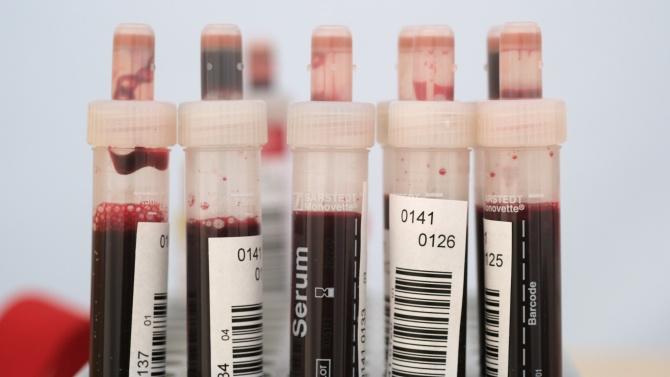 Над 2000 новозаразени с коронавирус в Турция за денонощието