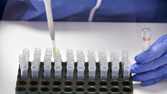 Германия регистрира нови 18 633 случая на заразяване с коронавирус