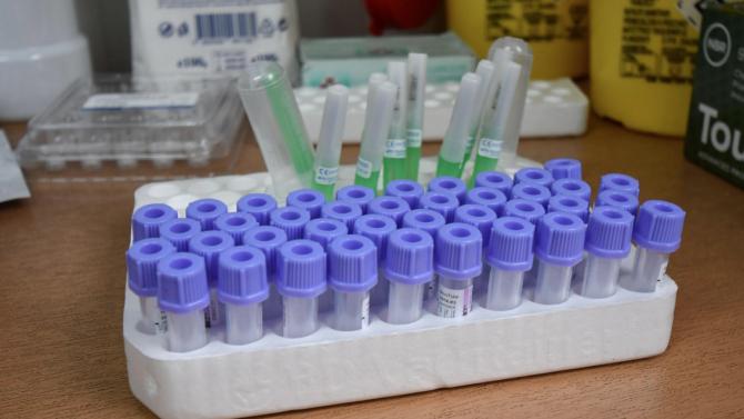 НАП признава за разход тестовете за COVID-19