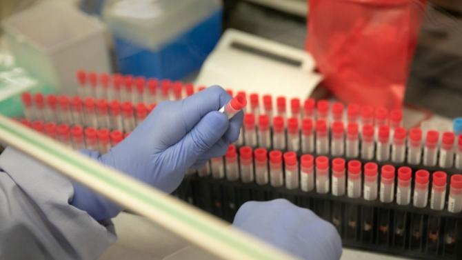 САЩ достигнаха нов рекорд от близо 228 000 новозаразени с COVID-19 за ден