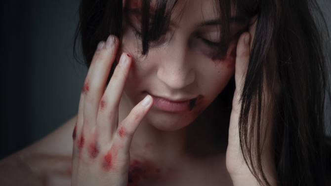 Жесток побой над 21-годишна жена, тя е в кома