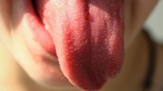 Рани в устата и