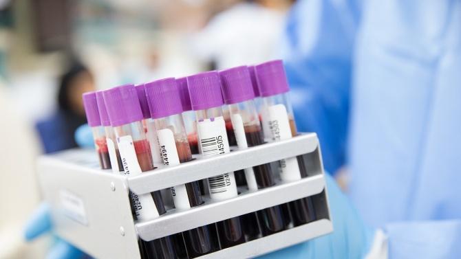 Към 10часа 25януари 2021 г. общо диагностицираните случаи в област