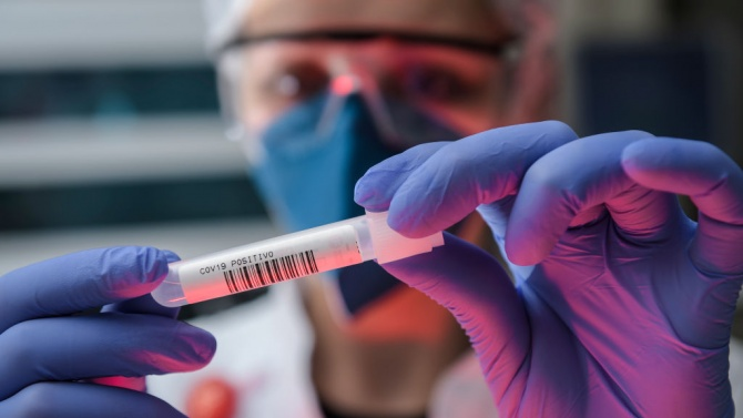 Остава нисък процентът на инфектираните с коронавирус у нас