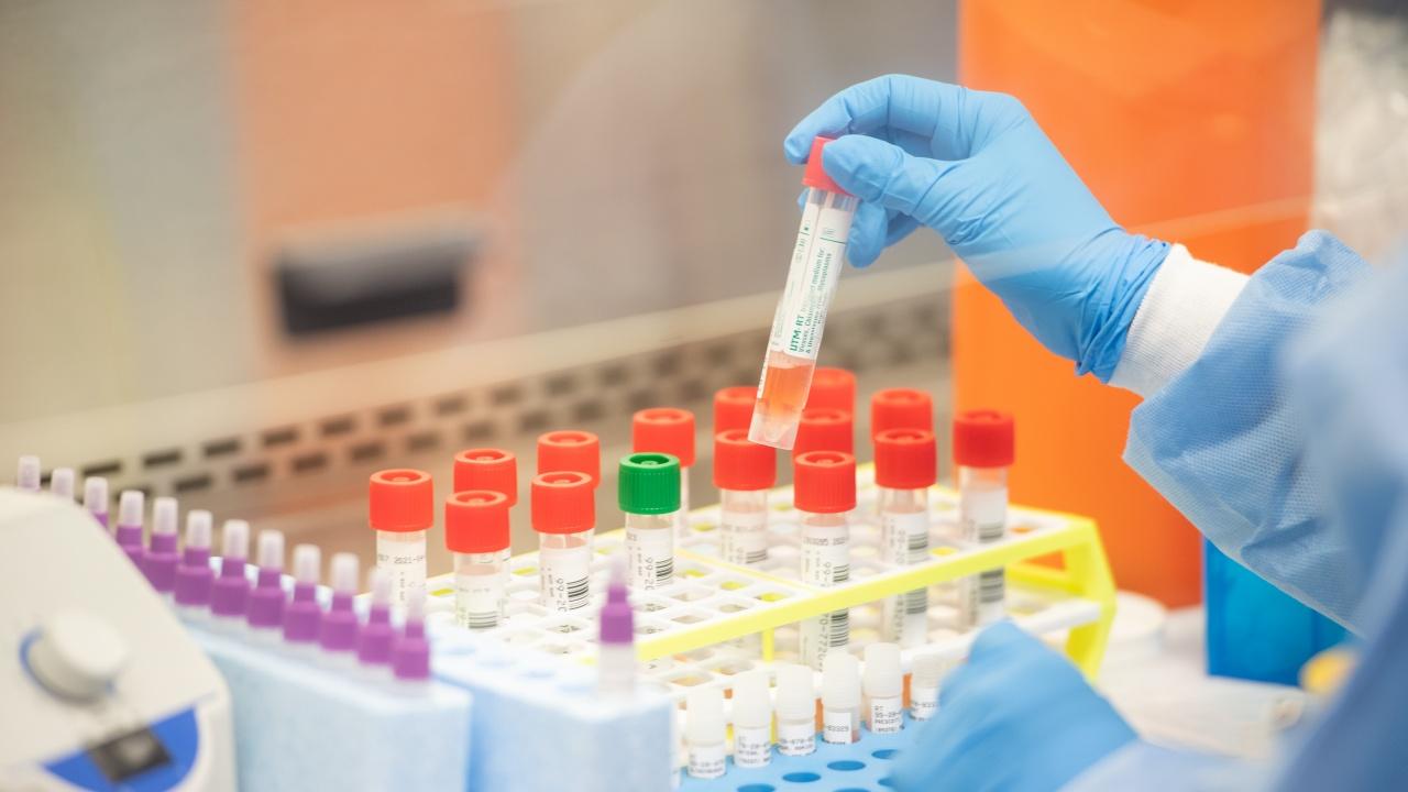 67% от положителните тестове за коронавирус в Хърватия са на заразени с британския вариант