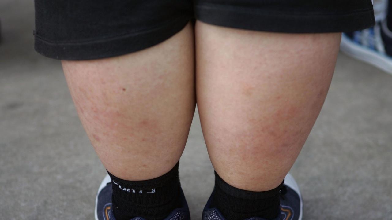 Пандемията може да доведе до увеличаване на децата със затлъстяване