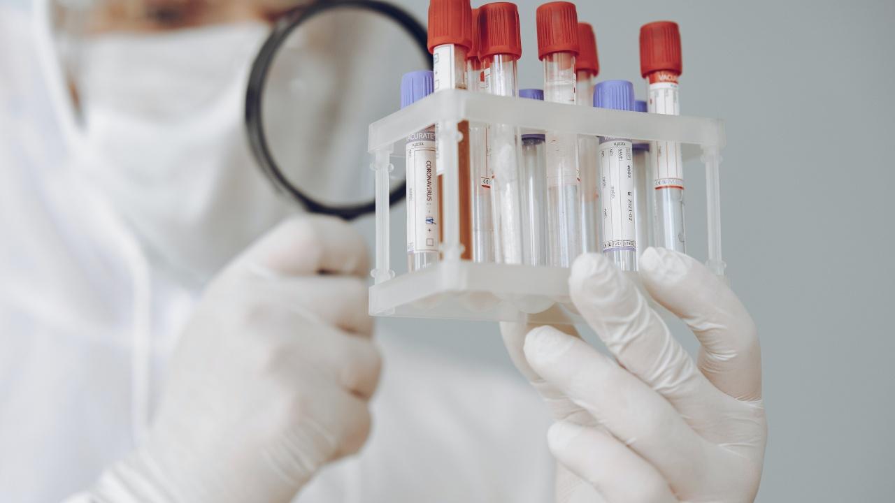 108 са активните случаи на COVID-19 във Видинско