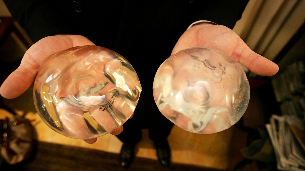 Силиконовите импланти навършиха 60 години