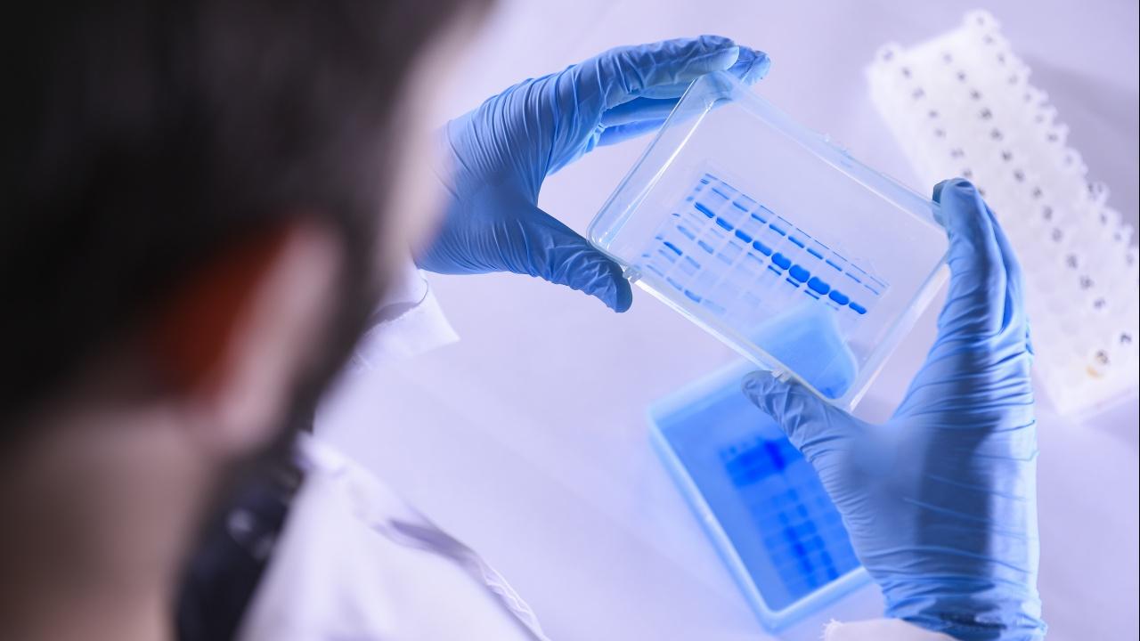 СЗО: Вариантът Делта е два пъти по-заразен от първоначалния коронавирус SARS-CoV-2