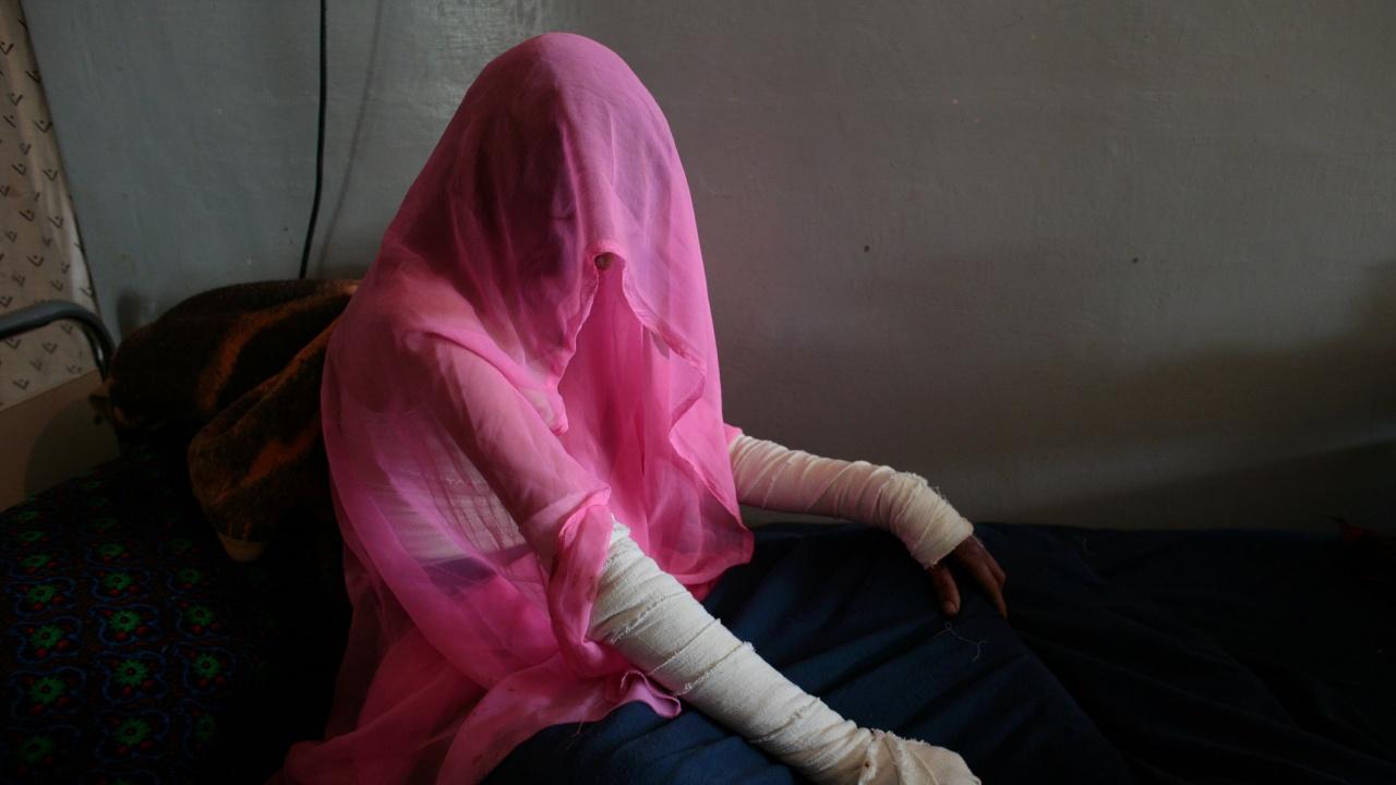 Жена е с изгаряния, след хвърлена бутилка със запалителна течност в дома ѝ