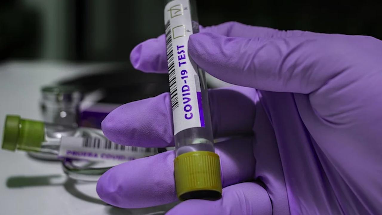 Британският здравен министър даде положителен тест за COVID-19