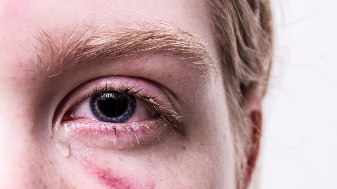 Системен насилник: Мъж преби жестоко приятелката си