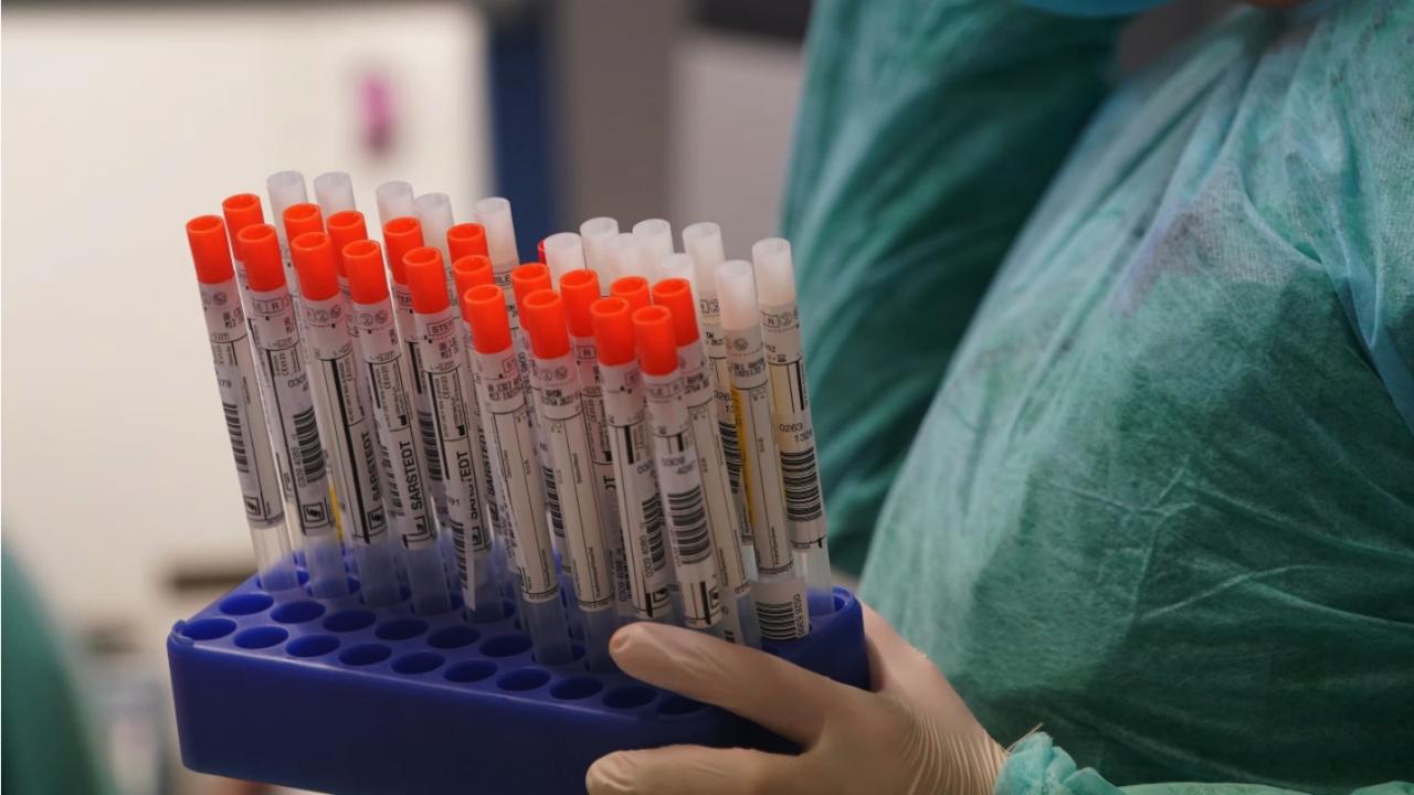 854 нови случая на заразяване с коронавирус у нас за последното денонощие