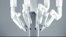 Роботизирана хирургия - робот da Vinci